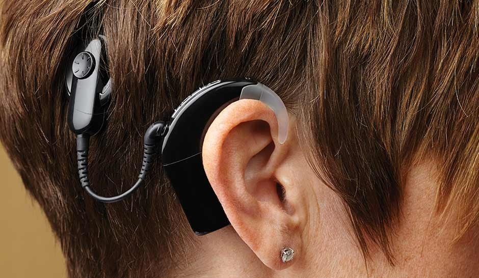 an overview of cochlear implants A cochlear implant is a small, complex electronic device that can help to provide a sense of sound people who are profoundly deaf or severely hard-of-hearing can get help from them the implant consists of two parts.