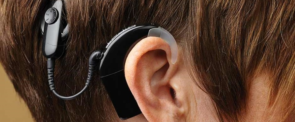 vcare-hearing-clinic-perth-Cochlear-Implant